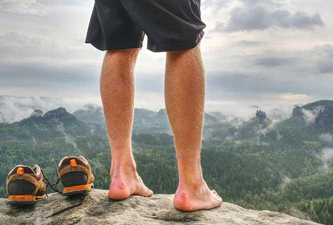 Wanderer mit Blasen an Füßen.